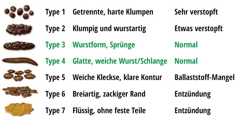 Bristol-Stuhlformen-Skala auf Deutsch