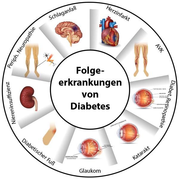 Infographik Folgekrankheiten von Diabetes