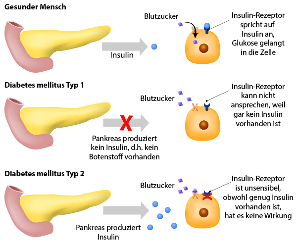 Infographik gesunder Mensch vs. Diabetes Typ 1 vs. Diabetes Typ 2
