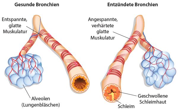 Infografik gesunde und entzündete Bronchien
