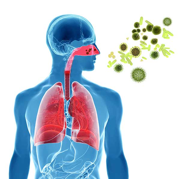 Illustration allergisches Asthma bronchiale
