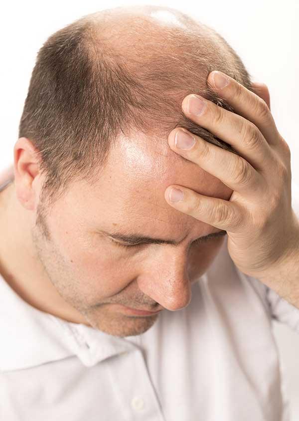 Ein Mann mit Haarausfall (Alopezie)