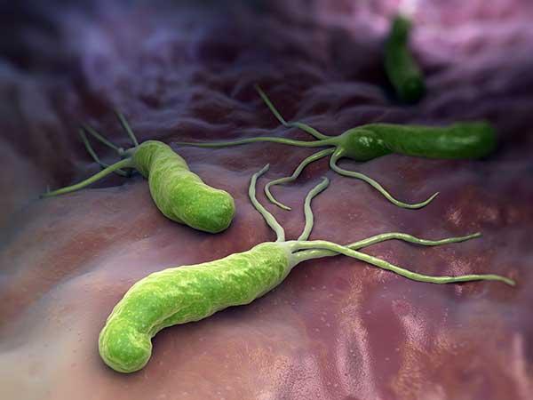 Bakterium Helicobacter pylori