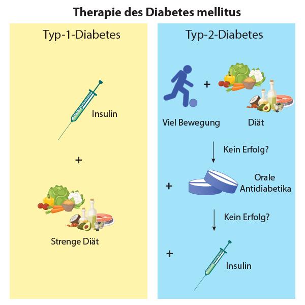 Infographik Therapie von Diabetes Typ 1 und von Diabetes Typ 2